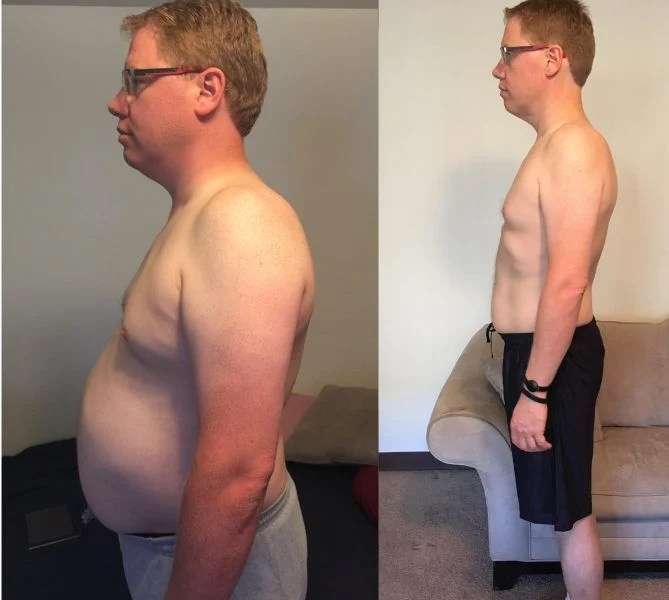 Tim Side Before and After