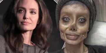 Teenager Undergoes 50 Surgeries to Look Like Angelina Jolie