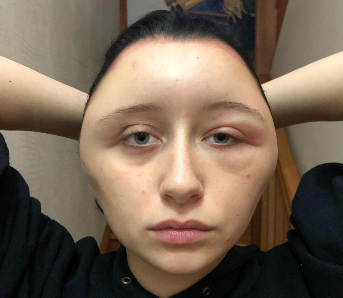 'Lightbulb head'- How hair dye caused French woman's ridiculous swelling