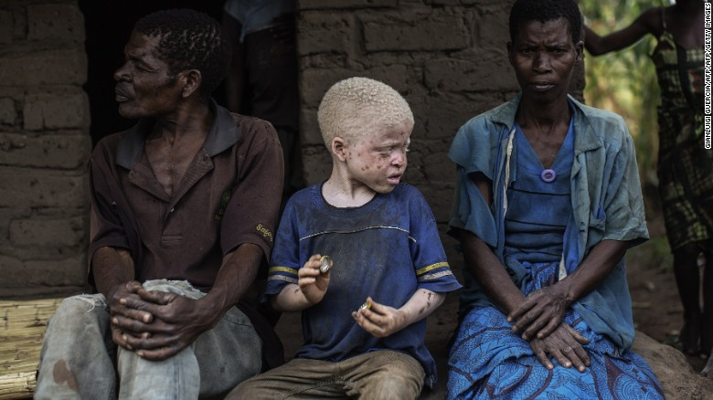 Malawi's albinos to contest in elections