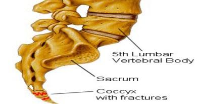 Coccyx Injury