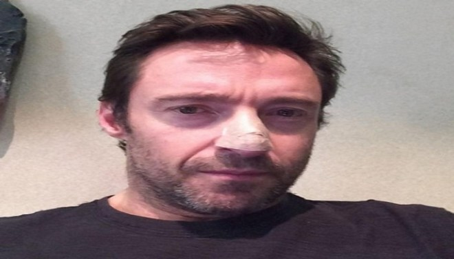 Hugh Jackman-Netmarkers
