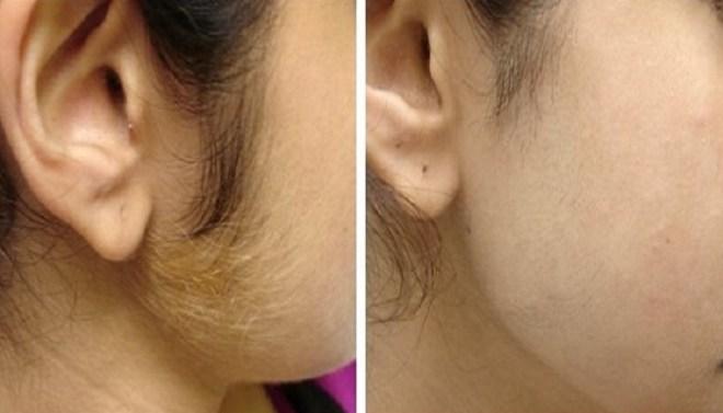 Facial-Hair-Netmarkers