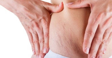 Home-Remedies-for-Stretch-Marks-Netmarkers