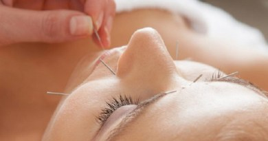 acupuncture treatment practise-Netmarkers