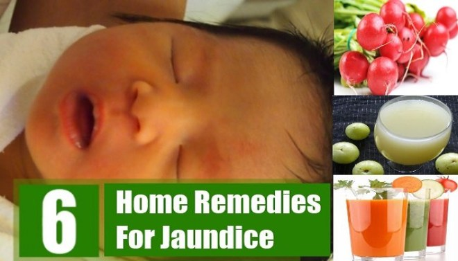 top-6-jaundice-home-remedies-netmarkers