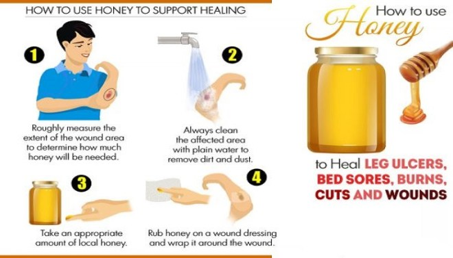 use-honey-to-heal-burns-cuts-wounds-and-bed-sores-netmarkers