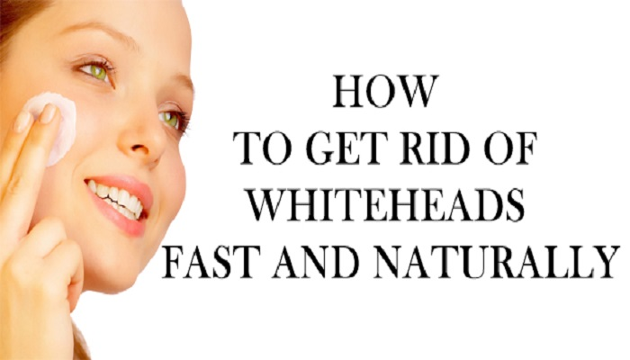 Home remedies for whiteheads netmarkers trending for How to get rid of things