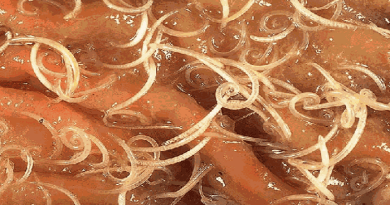 tapeworm-infection-from-sushi-netmarkers