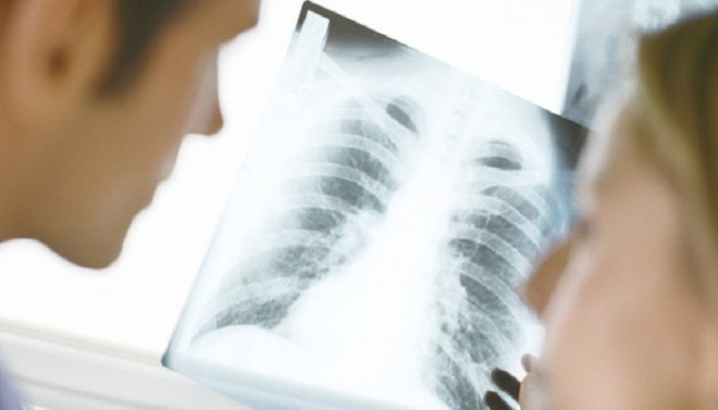 Lung cancer effects-Netmarkers