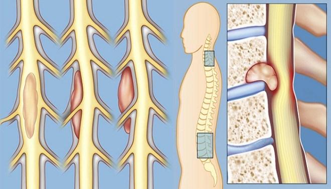 spinal-tumors-netmarkers