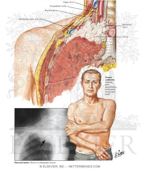 Pancoast Tumor Medically Speaking