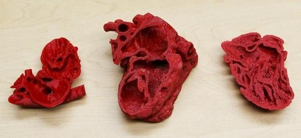 coeur 3D