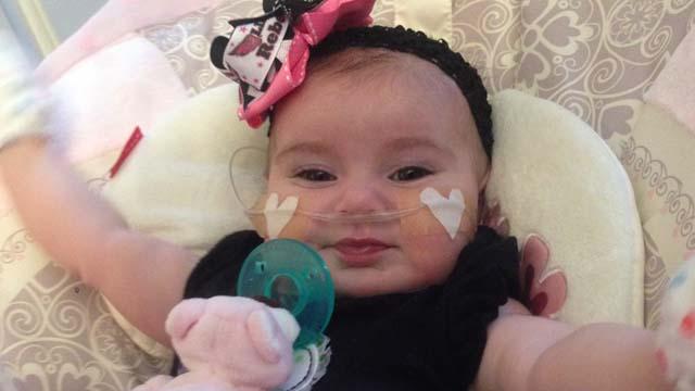 Gracie, le bébé né avec un demi cœur
