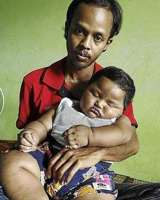 Bebe aveugle