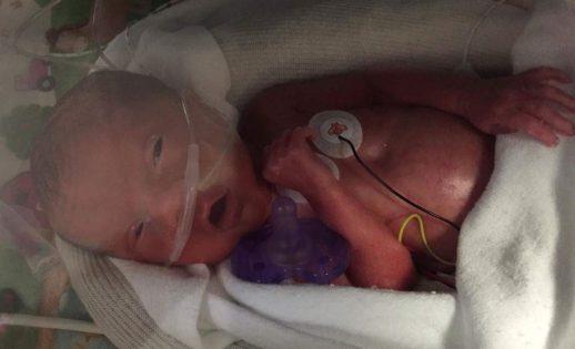 temoignages bebe premature