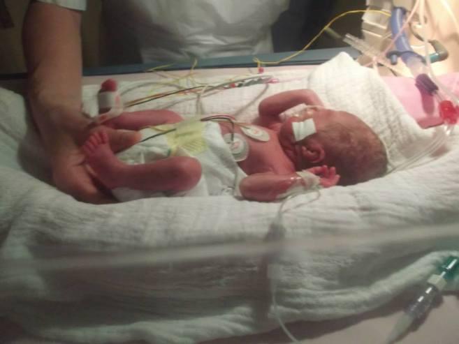 bebe premature