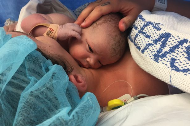 photo naissance cesarienne incroyable 4