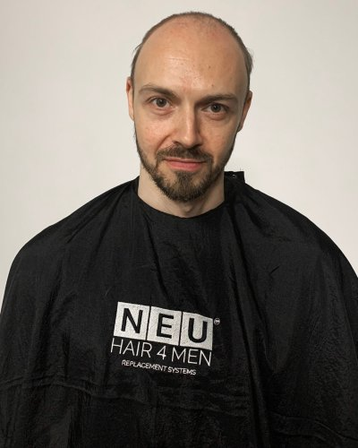 NEU HAIR 4 MEN BEFORE IMAGE 5