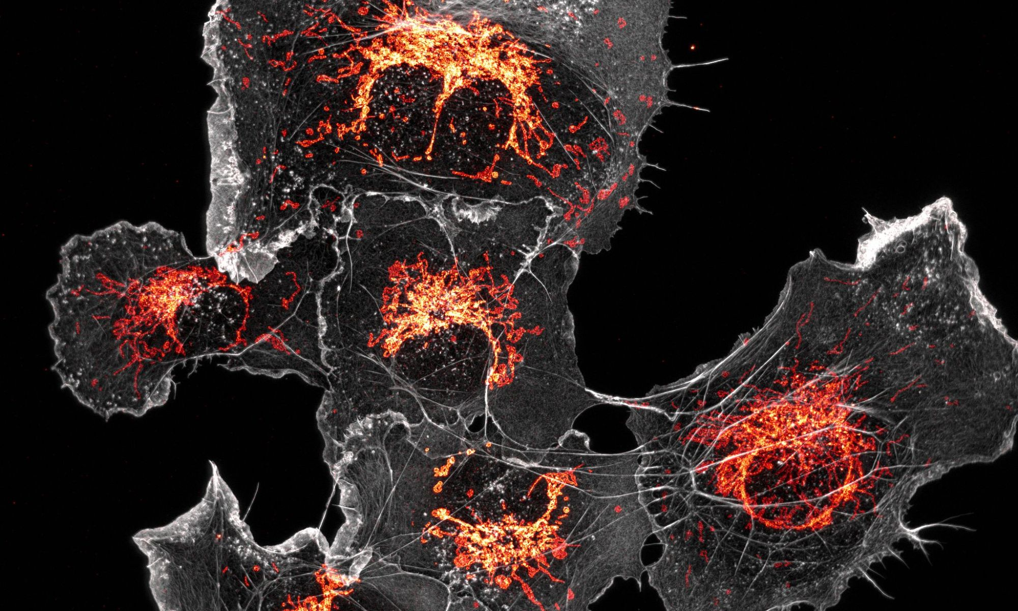 COS cells labeled for mitochondria (orange) and actin (grey)