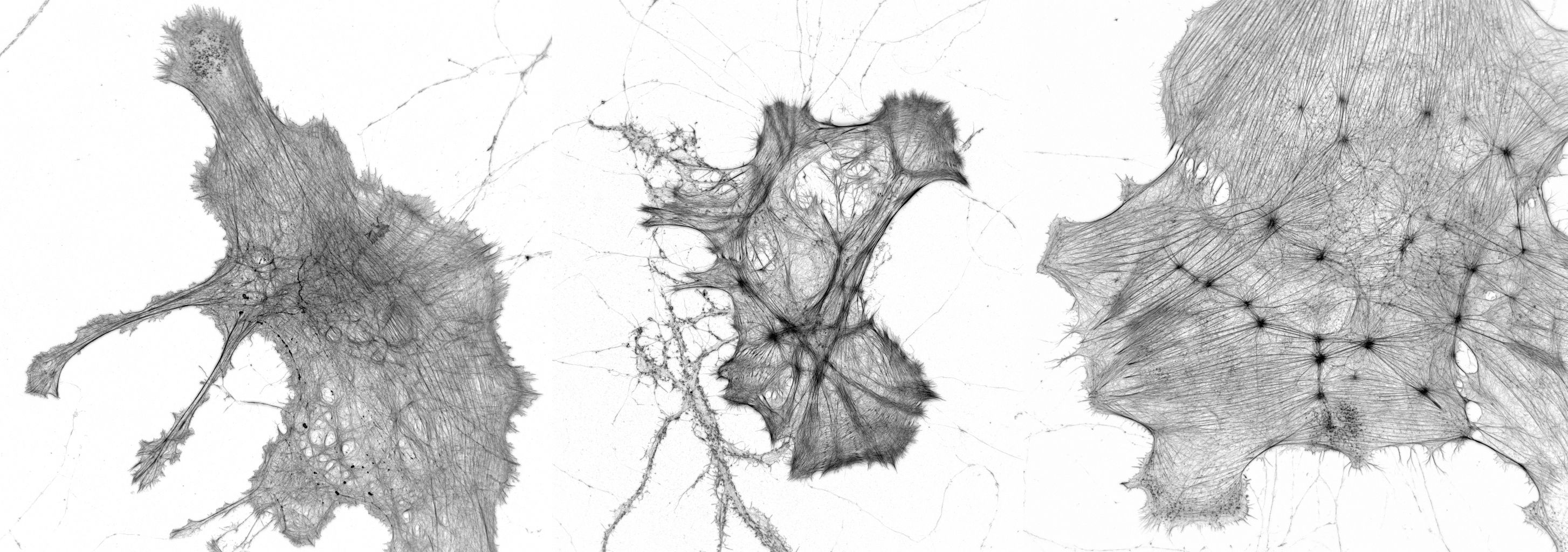 Gallery of glias labeled for actin