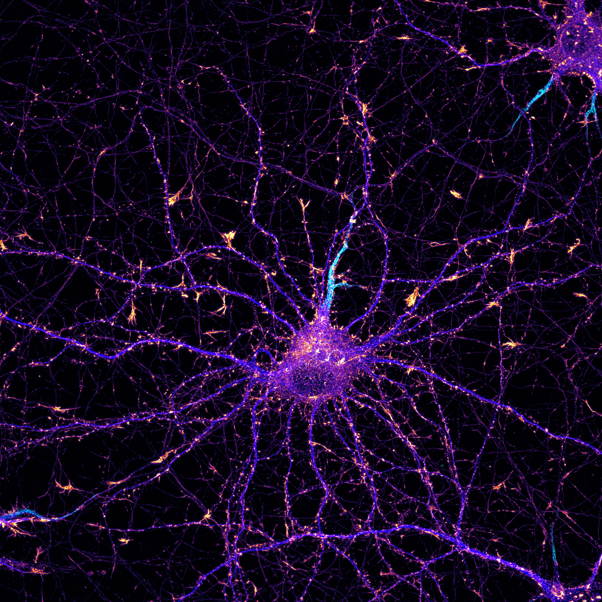 Hippocampal neuron labeled for actin (fire), map2 (blue) and neurofascin (cyan)