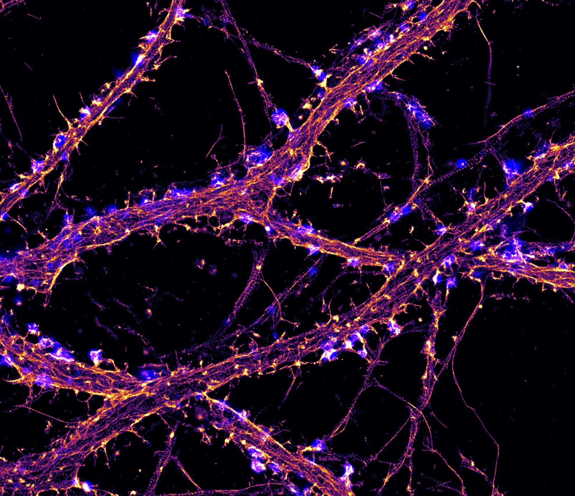 STORM image of actin (fire) with labeling for synapses (blue) in hippocampal neurons