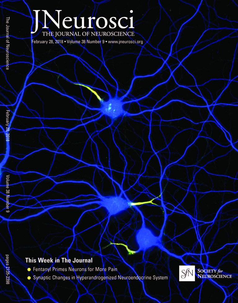 Neurons stained for map2 (blue), neurofascin (green) and b4-spectrin (red), cover of J. Neuroscience, 28 Feb. 2018