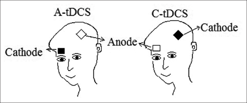 Figure 1: Placement of electrodes for a-tDCS and c-tDCS