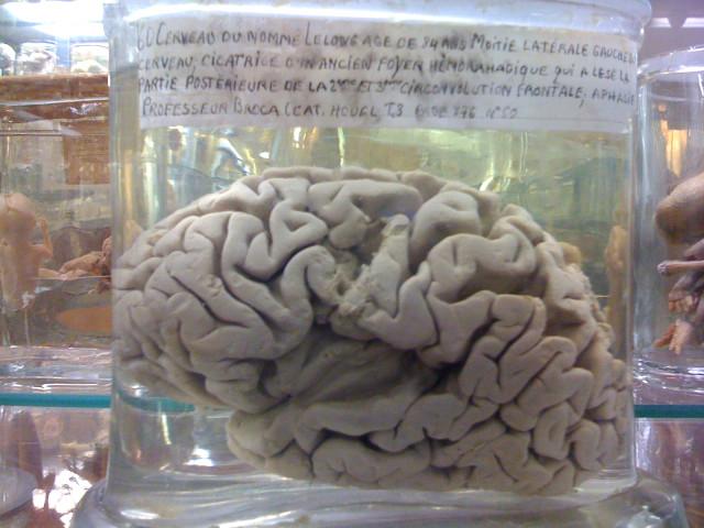 Neuroturismo en París: tras los pasos de Paul Broca.