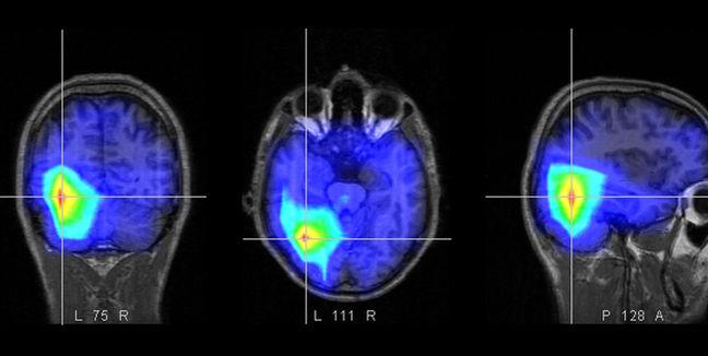 imagen del escáner de un cerebro de un paciente en estado vegetativo