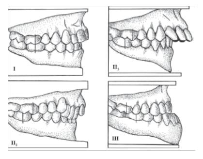 Imagen de la anatomía dental de la oclusión