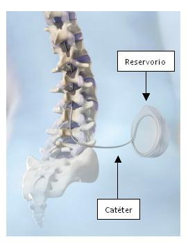 Imagen explicativa de la colocación de la bomba de blacofeno intratecal