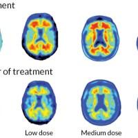 """خوشبینی محتاطانه درباره """"داروی جدید آلزایمر"""""""