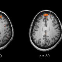 نیکوتین فعالیت کم مغز در اسکیزوفرنی را اصلاح می کند/دلیل مصرف بالای سیگار در مبتلایان به اسکیزوفرنی