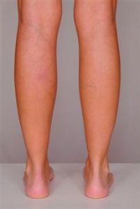 varicose veins treatment 1