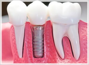 dental implants 69