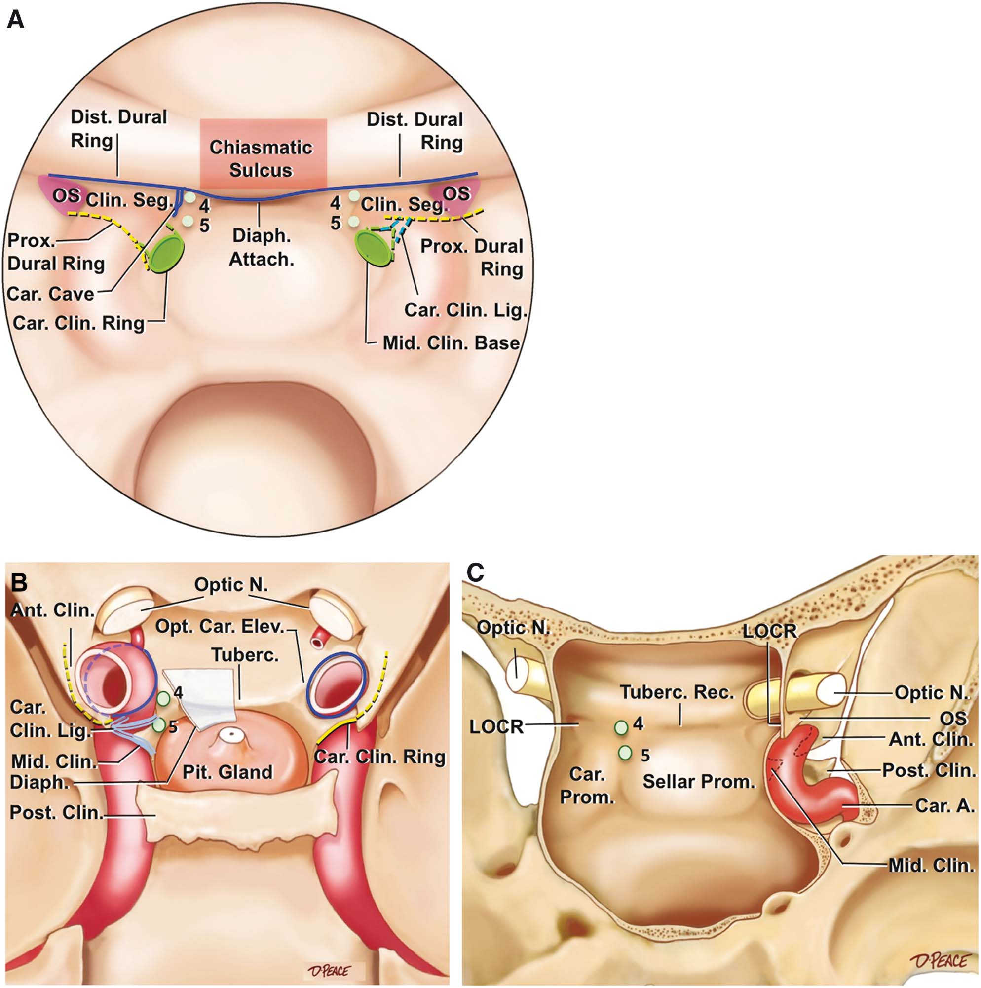 The Recesses Of The Sellar Wall Of The Sphenoid Sinus And