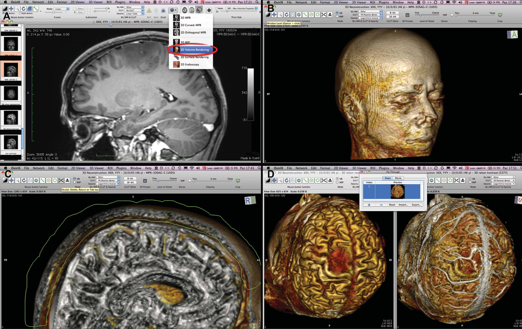 OsiriX | Neurosurgery Blog