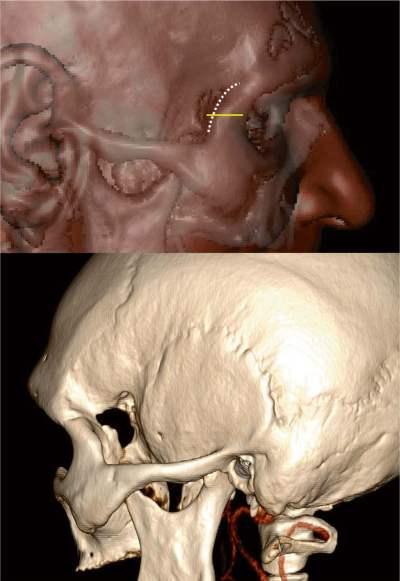 Printable Endoscopy: Neurosurgery Blog