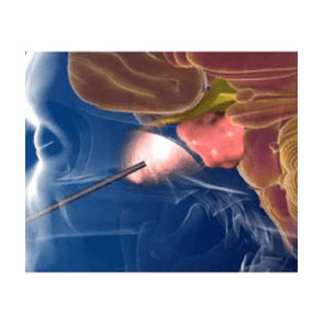 ΕΝΔΟΣΚΟΠΙΚΗ ΔΙΑΣΦΗΝΟΕΙΔΗΣ ΧΕΙΡΟΥΡΓΙΚΗ ΥΠΟΦΥΣΗΣ ΚΑΙ ΒΑΣΗΣ ΚΡΑΝΙΟΥ