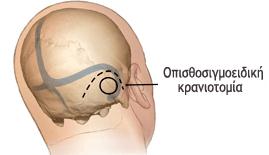 Key hole craniotomy.