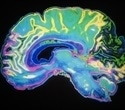 Smarter algorithms could lead to greater understanding of the brain's true complexity