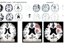 Machine Learning Used to Automatically Identify Brain Tumors