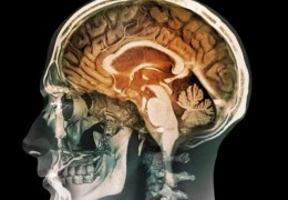 For Brain Bleeds, 'Gentle' but Thorough Surgery May Boost Outcomes