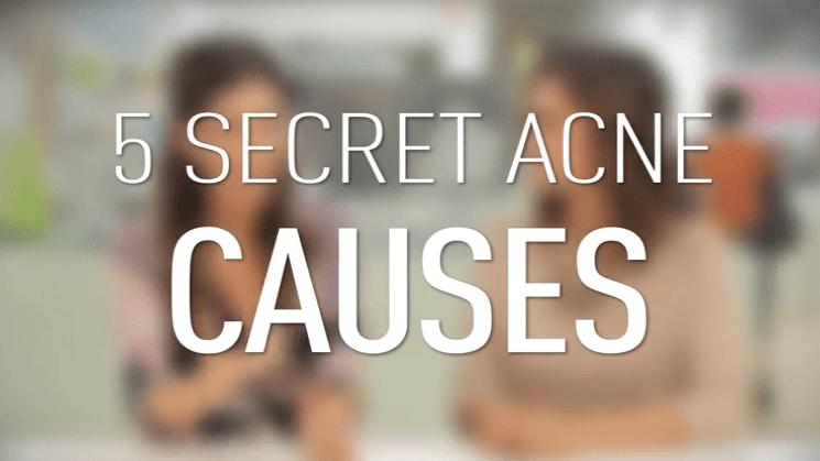 5 Strange Acne Casues