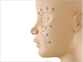 Sensation Returns After Face Transplant featured image