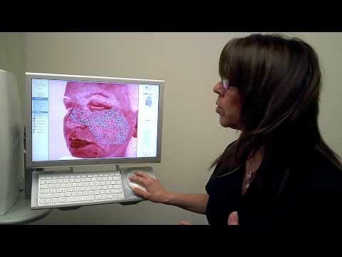 Dr. Jacono – Laser Skin Resurfacing featured image