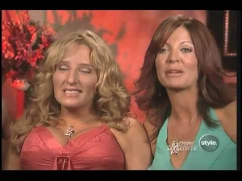 Dr. Shamban – Extreme Makeover: Best Friends Get The Dr. Ava Treatment featured image