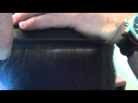 Dr. Ziering – Ziering Hair Transplant (Suture Line) featured image